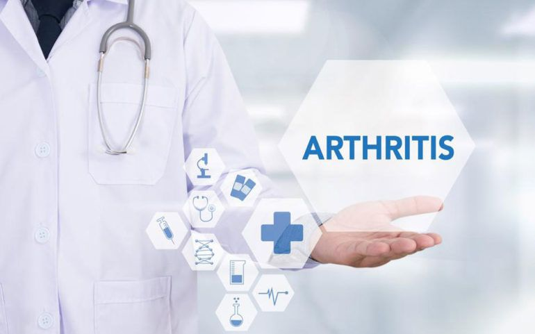 A brief overview of arthritis
