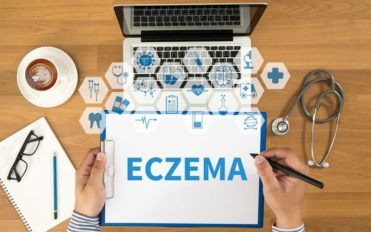 Everything you need to know about eczema