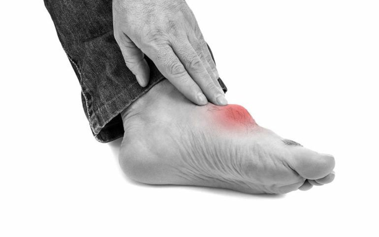 Immediate pain relief measures for gout