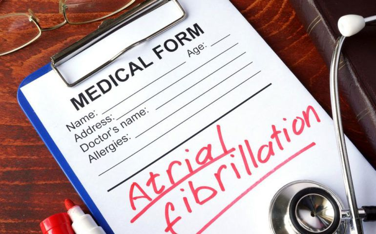 What you should do for AFib treatment