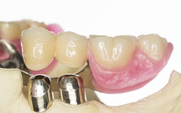 Benefits of getting dentures in a day