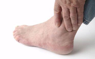 3 Daily habits to avoid foot pain