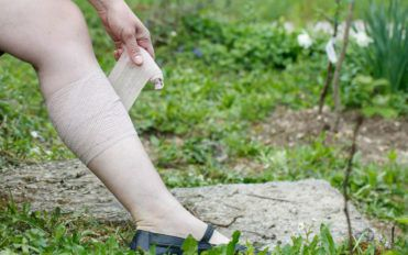 3 home remedies for deep vein thrombosis