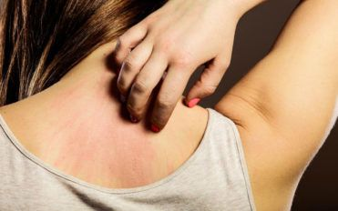 4 common causes that lead to eczema