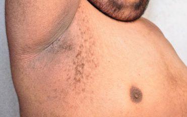4 popular home remedies for underarm rash
