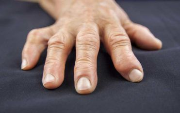 5 Causes of Swollen Fingers