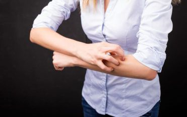 5 effective treatments for atopic dermatitis
