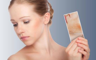 6 things you should not do if you have skin rash