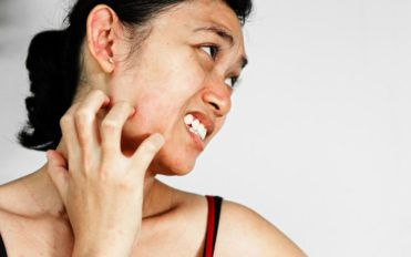 7 easy and useful ways to manage itchy skin