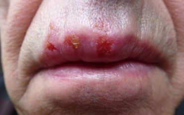 7 myths about herpes