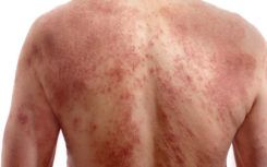 A few quick ways to identify chickenpox infection