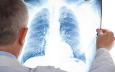 A few things you should know aboutmesothelioma cancer
