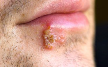 Blisters – Causes and how to heal blisters quickly