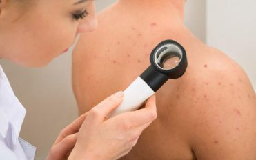 Bursting the myths about fungal infections