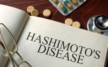 Causes and symptoms of hashimotos disease