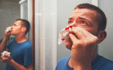 Causes of Nose Bleeding and How to Cure It