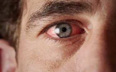 Common Causes of Blood Vessel Burst in the Eye