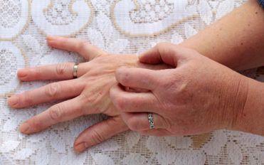 Common causes of skin rash