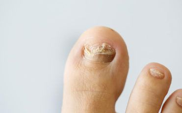 Common nail infections to avoid