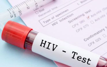 Common signs and symptoms of HIV