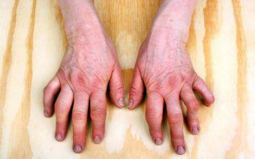 Do you have psoriatic arthritis symptoms