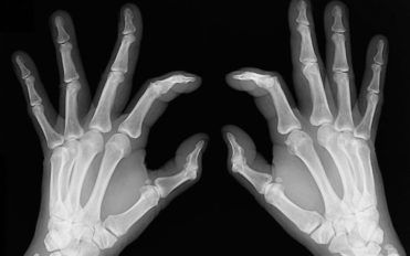 Early signs of rheumatoid arthritis and how to catch them