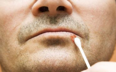 Effective medications to treat canker sores