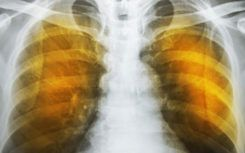Emphysema symptoms: What you ought to know