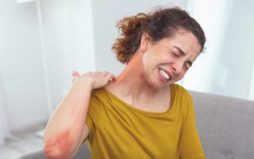 Everything You Need to Know About Shingles Rashes