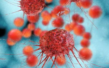Everything you need to know about metastatic ovarian cancer