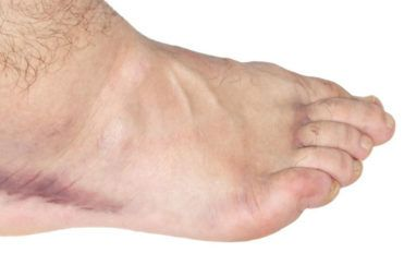 Exercises for swollen ankles treatment