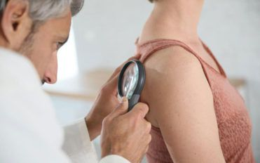 Get rid of shingles by knowing the best treatment options