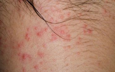 Here are a few common causes of atopic dermatitis