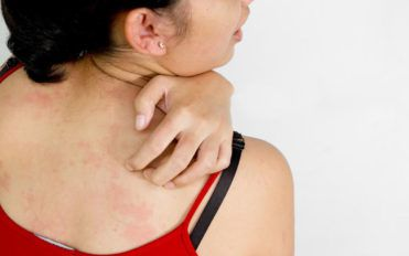 Here are a few common causes of itchy skin