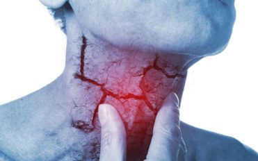 Here are a few common types of head neck cancer and their symptoms