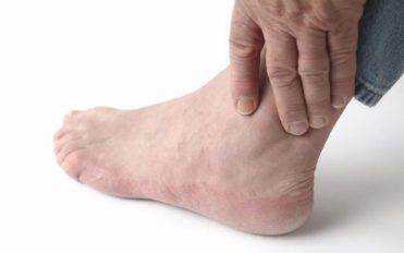 Home treatment for relief from gout foot pain