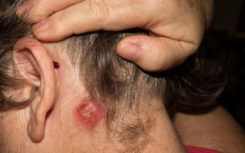 How can you spot the signs of staph infection