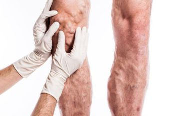 How to identify deep vein thrombosis at an early stage