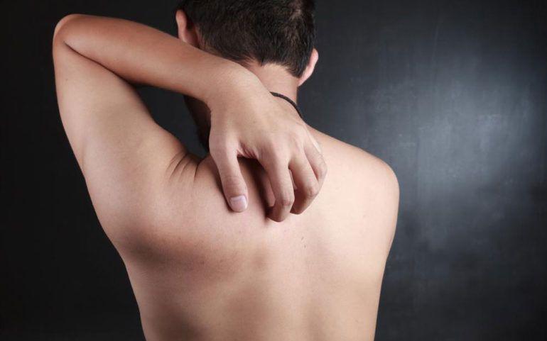 How to identify skin rashes using skin rash pictures?
