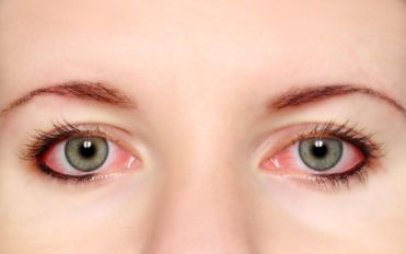 How to properly care for your contact lenses