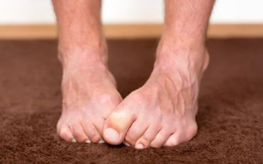 Important symptoms of neuropathy that should not be ignored