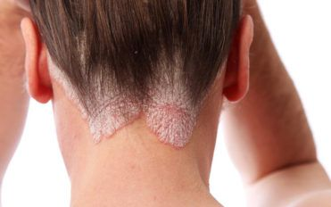 Know the skin ailment: Scalp psoriasis