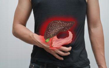 Liver cancer: Causes, symptoms, diagnosis, treatment, and prevention