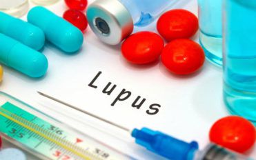 Lupus – An Overview