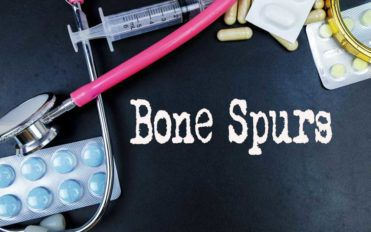 Prevention and Treatment for Bone Spurs