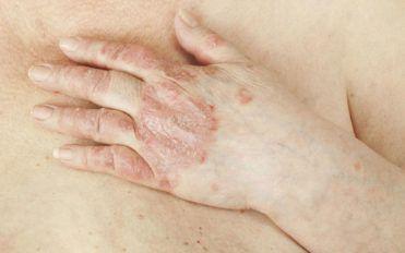 Psoriatic arthritis and popular treatment options
