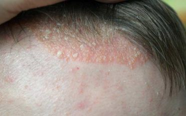 Scalp Psoriasis – Symptoms to Watch out For