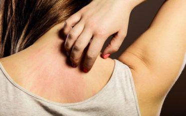 Seasonal allergies – An overview