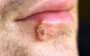 Signs that tell you might have herpes