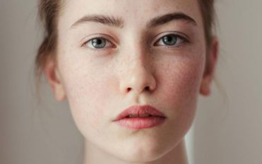 Simple home remedies for freckles